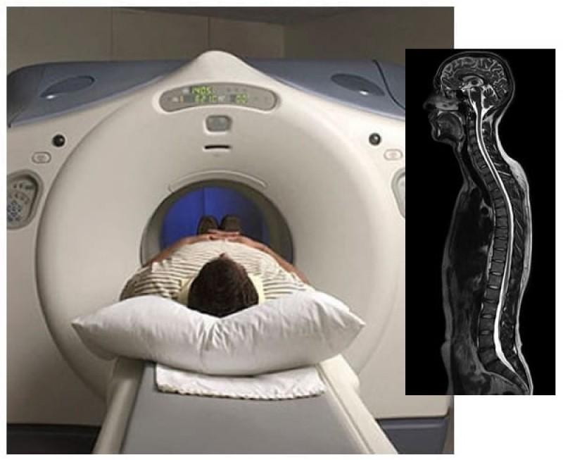 Mutirão de ressonância magnética vai atender 200 pacientes em Tubarão
